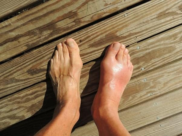 Do You Have Gout